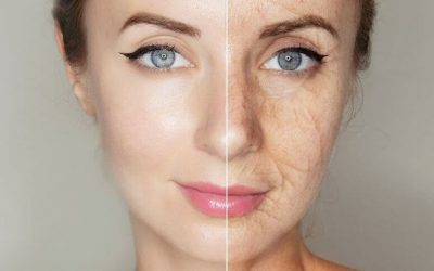 How Menopause Issues Dramatically Change Skin